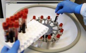 Число инфицированных ВИЧ в России превысило 1 млн человек. Половина не получает лечения