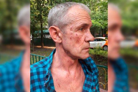 В «Мосгортрансе» заместитель директора избил ногами пожилого водителя