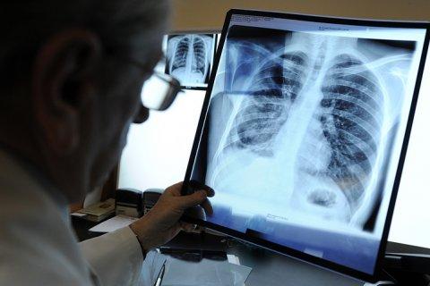 Минздрав РФ обещает победить туберкулез через 13 лет