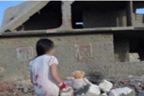В Египте задержали изготовителей фальшивых снимков «раненых детей из Алеппо»